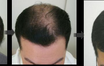 薄毛治療の生の声