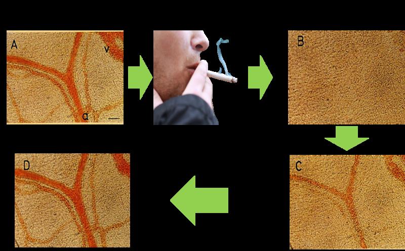 喫煙後の血流