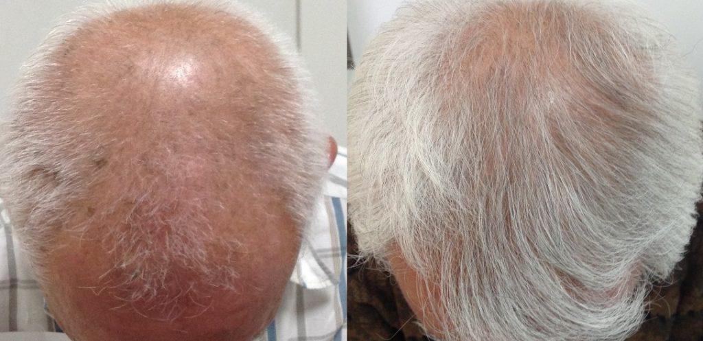 70代男性AGAの発毛症例