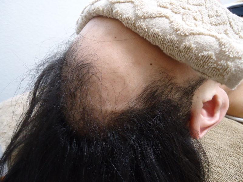 仕事のストレスなどにより、頭髪が薄くなってきていました。 AGA治療 Before
