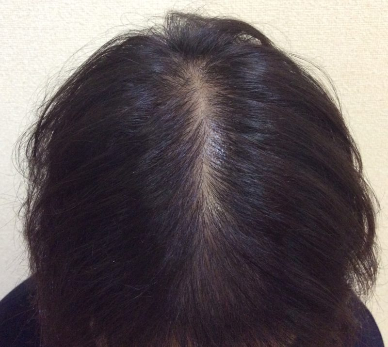 段々と髪の毛自体が細くなっていき、頭頂部が薄くなったことが悩みでした。 AGA治療 After