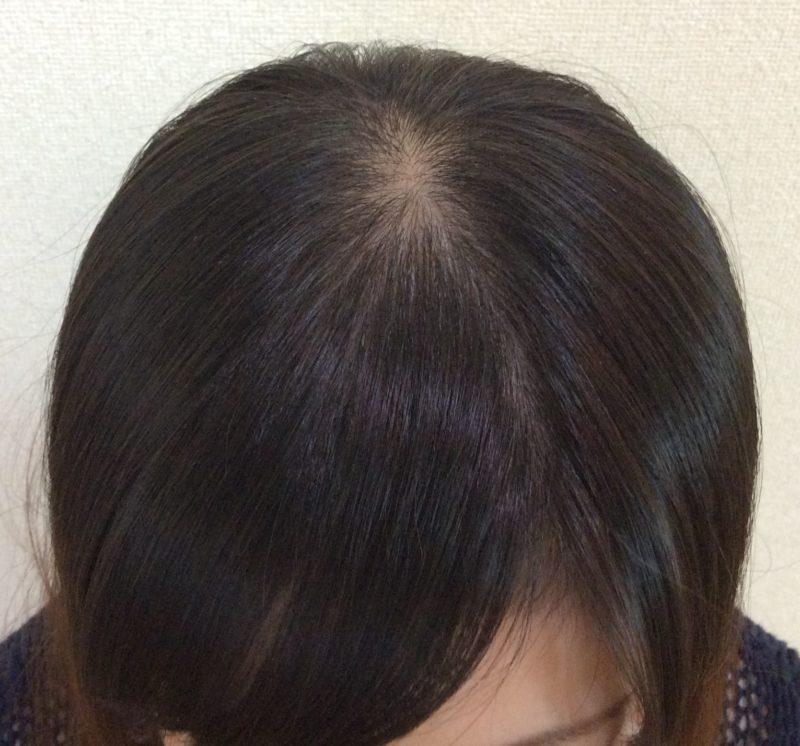 頭頂部の薄毛、髪の細さが気になっていました。 AGA治療 After