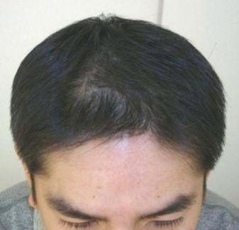 思っていたよりも早く髪が生えたので家族や同僚からも驚かれました! AGA治療 After
