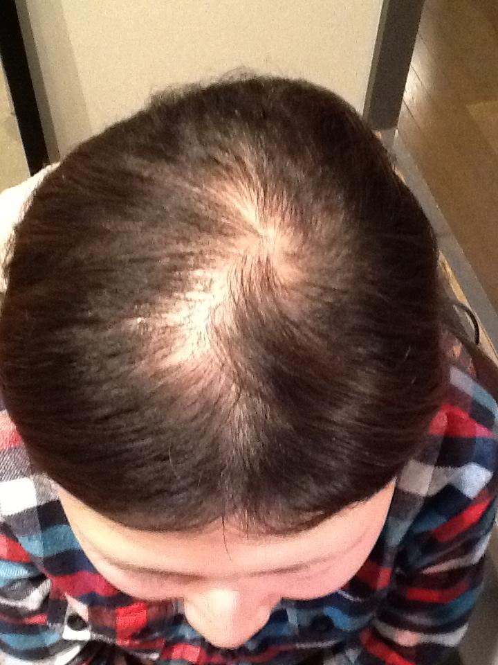 もっと早く発毛相談していればよかった! AGA治療 Before