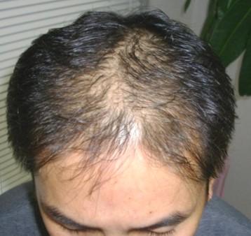 思っていたよりも早く髪が生えたので家族や同僚からも驚かれました! AGA治療前