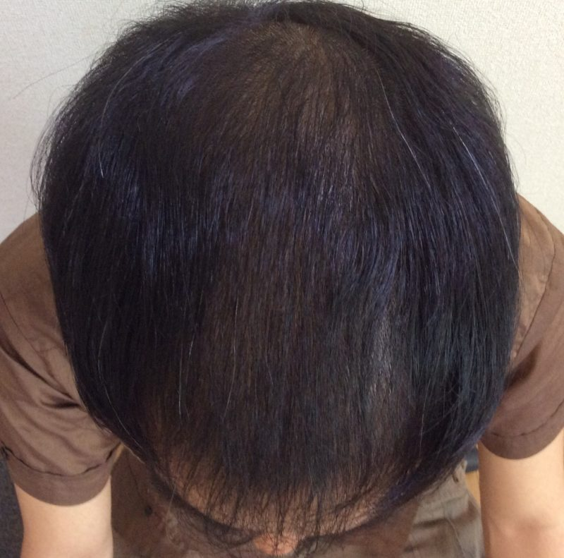 AGAの進行と頭皮のベタつきで困っていた。 AGA治療 After