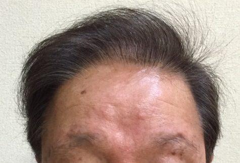 40年前から薄毛で悩んでおり、植毛などの治療を受けてきました。 AGA治療 After