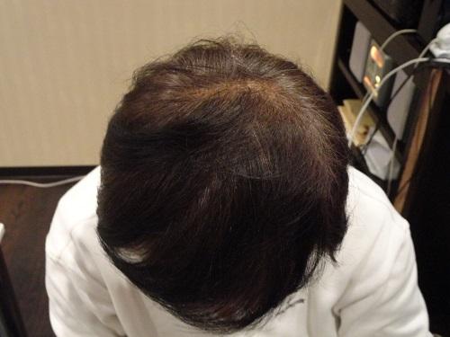 妻に頭頂部の薄さについて指摘をうけ、半ば諦めていました。 AGA治療 After