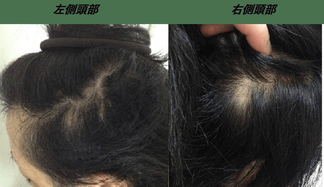 円形脱毛症で皮膚科に行っても改善みられず、諦めかけていました・・・。 AGA治療 After