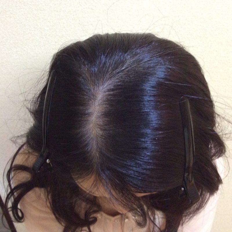 前頭部から頭頂部にかけて分け目が目立つことに悩んでいました。 AGA治療 After