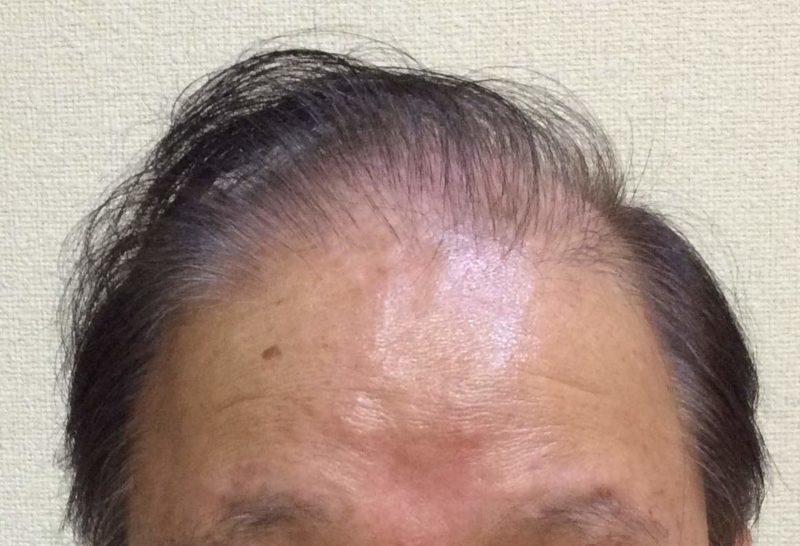 40年前から薄毛で悩んでおり、植毛などの治療を受けてきました。 AGA治療 Before