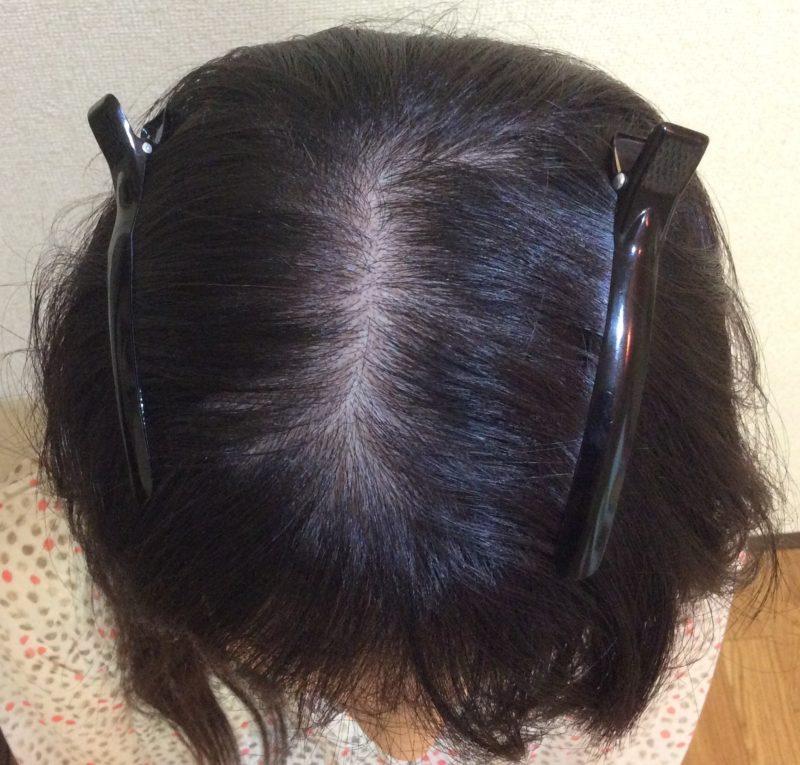 前頭部から頭頂部にかけて分け目が目立つことに悩んでいました。 AGA治療 Before