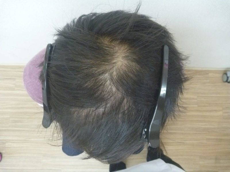 3か月で薄毛が改善され、就活で内定を勝ち取り ました! AGA治療前