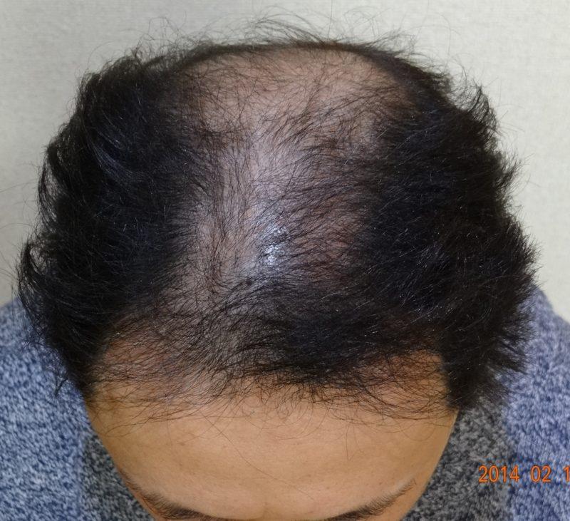 20代後半から薄毛が進行し、周囲の目を気にするようになった。 AGA治療 Before