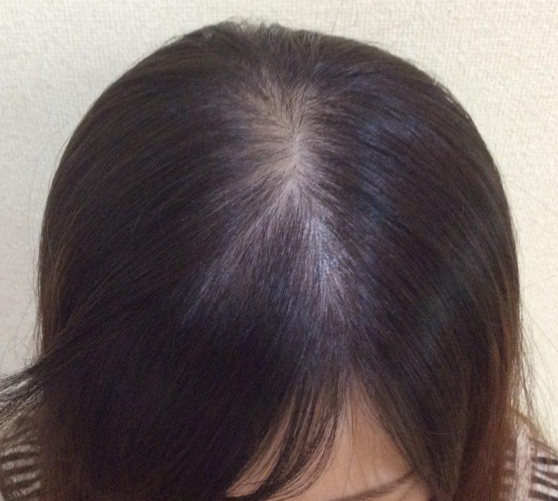 頭頂部の薄毛、髪の細さが気になっていました。 AGA治療 Before