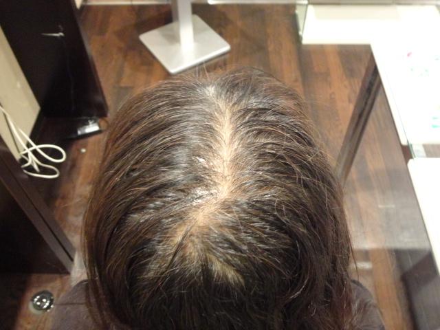 頭頂部から前頭部が透けて見える。髪の毛全体にボリュームダウンしていました。 AGA治療 Before