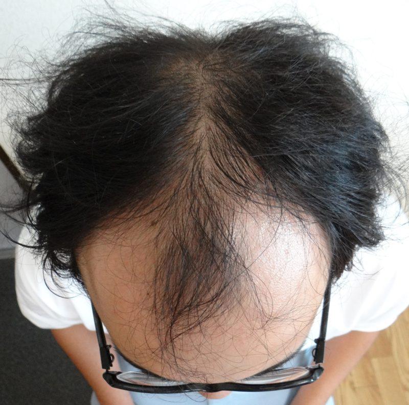 前頭部と後頭部の薄毛が気になっていました。 AGA治療 Before