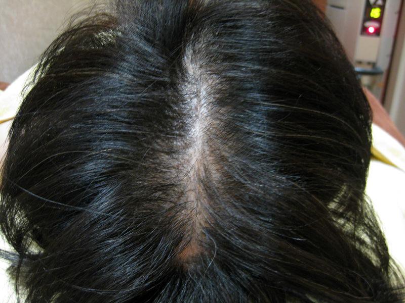 髪全体が薄く外出には、帽子やウィッグが必要でした。 AGA治療 Before