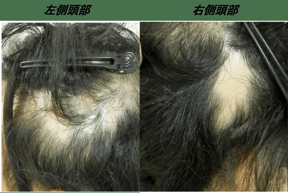 円形脱毛症で皮膚科に行っても改善みられず、諦めかけていました・・・。 AGA治療 Before