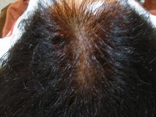 抜け毛・分け目の薄毛・髪の毛の痛みに悩んで来店しました。 AGA治療 Before