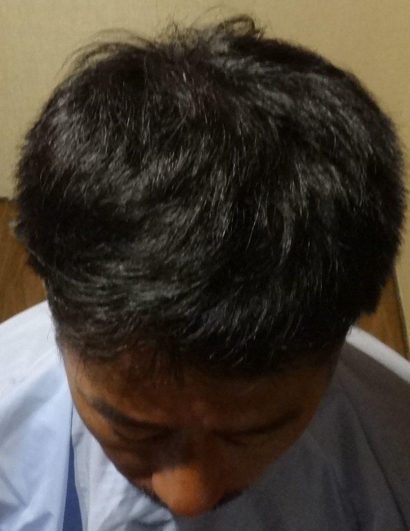 前頭部が気になりだして来店しました。 AGA治療 After