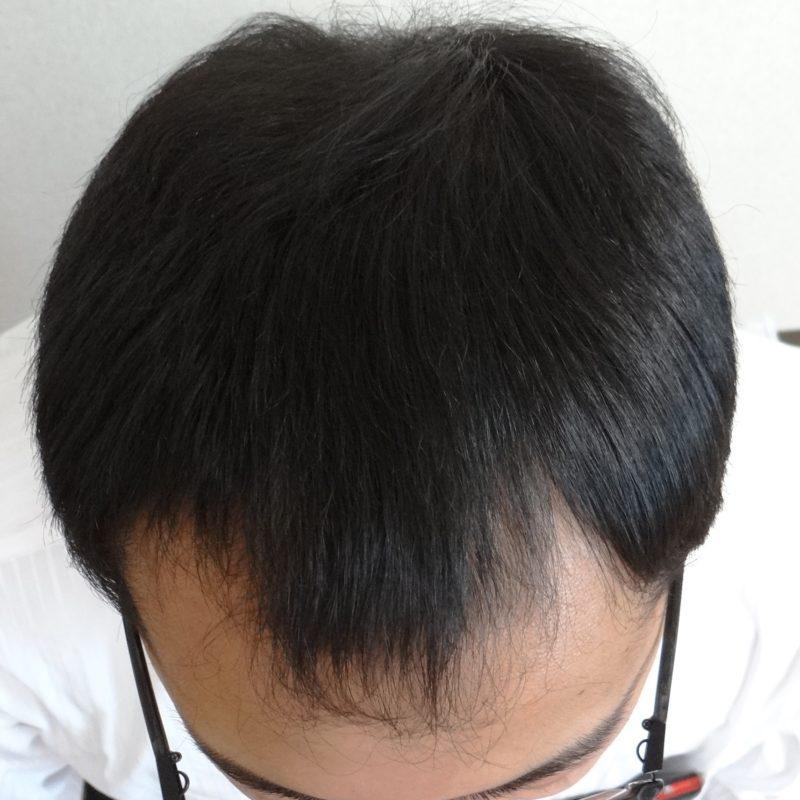前頭部と後頭部の薄毛が気になっていました。 AGA治療 After