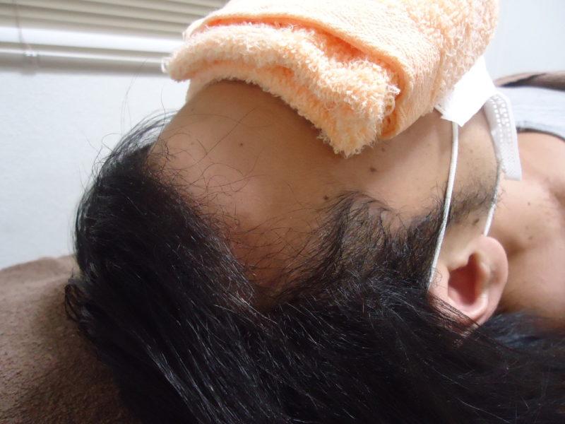 仕事のストレスなどにより、頭髪が薄くなってきていました。 AGA治療 After