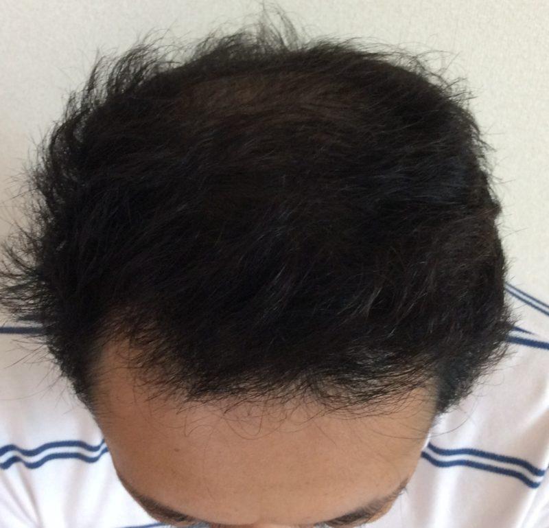 20代後半から薄毛が進行し、周囲の目を気にするようになった。 AGA治療 After