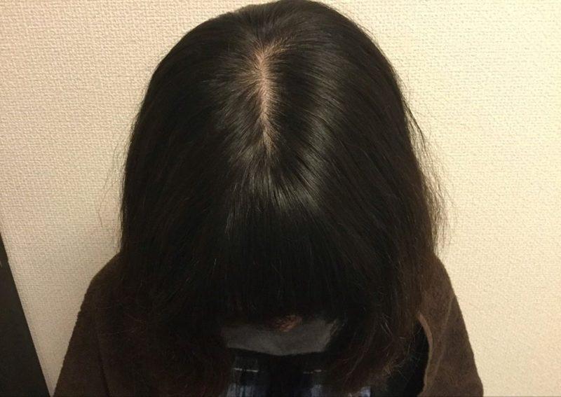 抜け毛と前髪が透けているのが気になっていました。 AGA治療 After