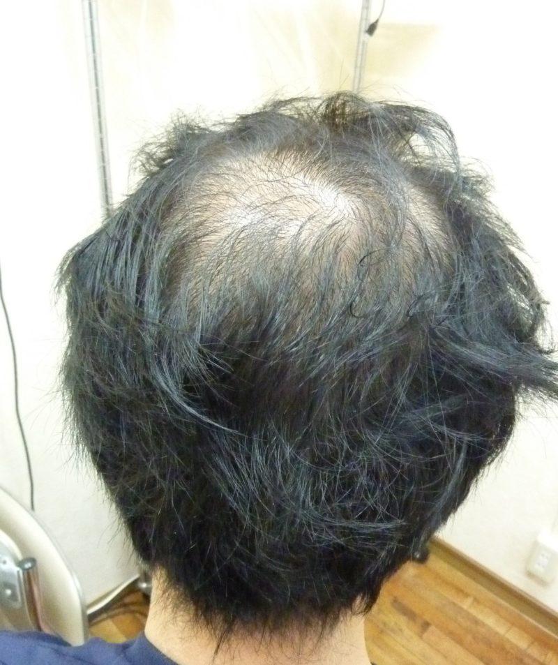 髪が薄くなり、カッコ悪いので自分なりに隠してました…。 AGA治療 Before