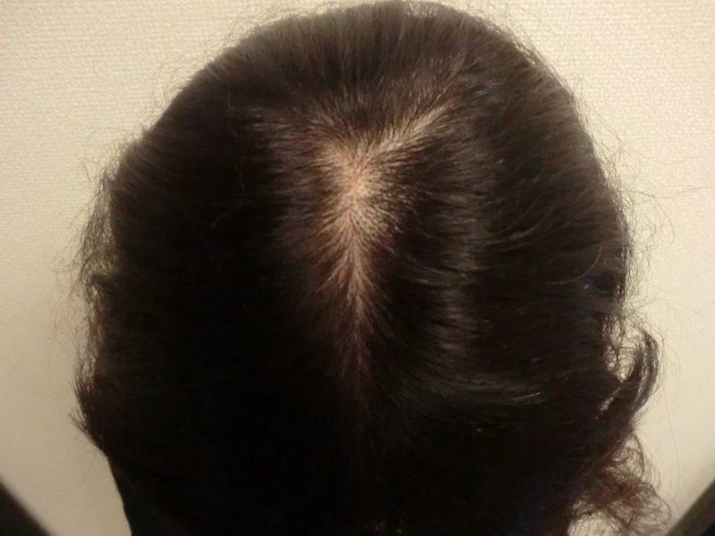 抜け毛と前髪が透けているのが気になっていました。 AGA治療 Before
