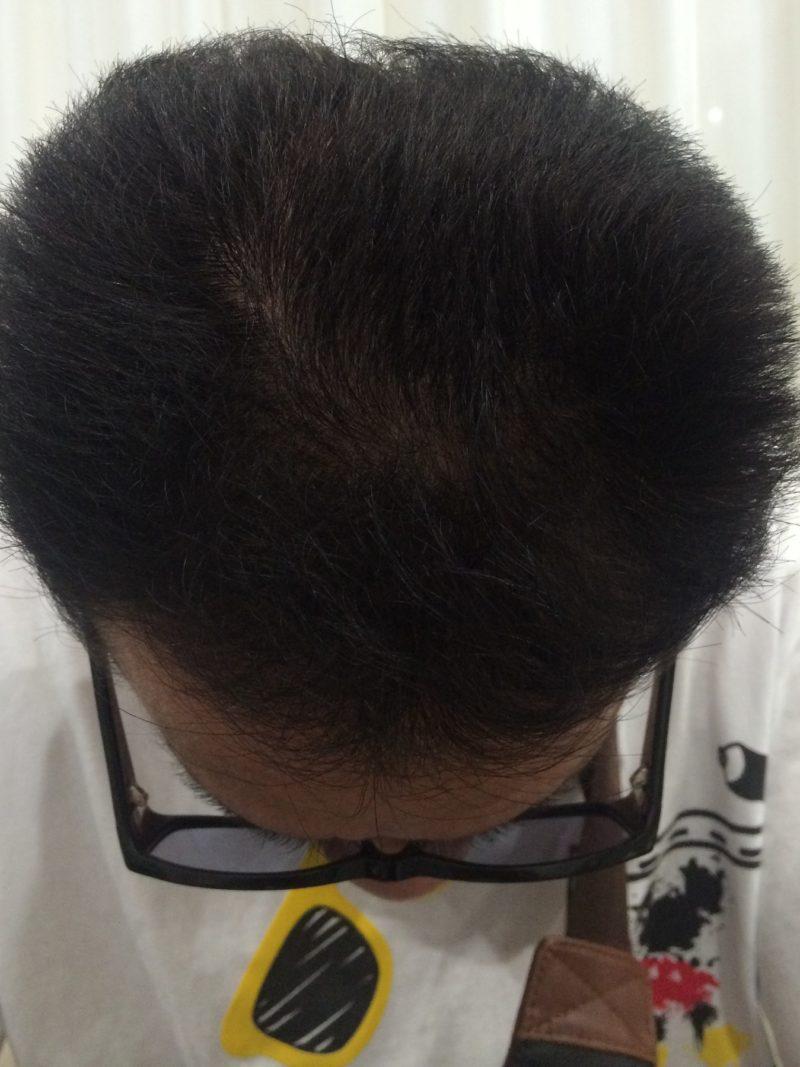 髪を分けた時に目立つ薄毛が気になってました。 AGA治療 After