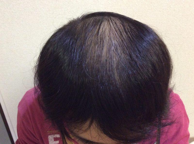 髪にボリュームが無くて悩んでいました AGA治療 Before