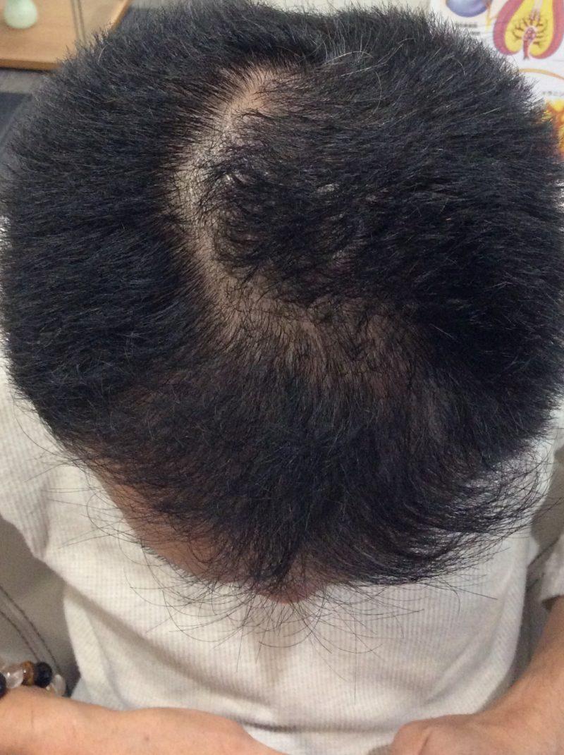 髪を分けた時に目立つ薄毛が気になってました。 AGA治療 Before