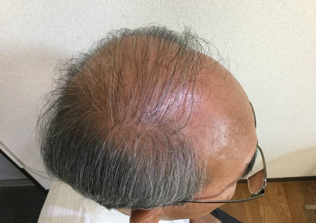 60代薄毛男性Before1