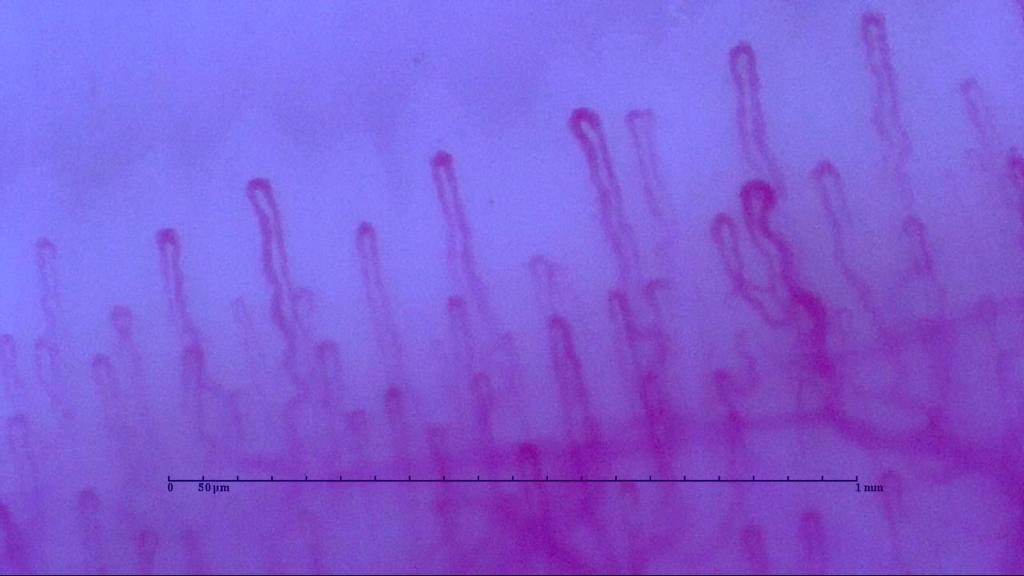 筋トレでハゲるか検証6か月目の血流