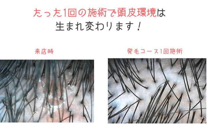 たった1回の施術で頭皮の赤みや汚れ(頭皮環境)は生まれ変わります!