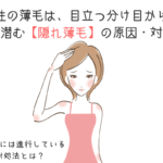 女性の薄毛は、目立つ分け目から?身近に潜む【隠れ薄毛】の原因・対策は?