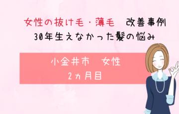 【小金井市・60代女性の薄毛改善】30年全く生えなかった毛根に2か月で発毛