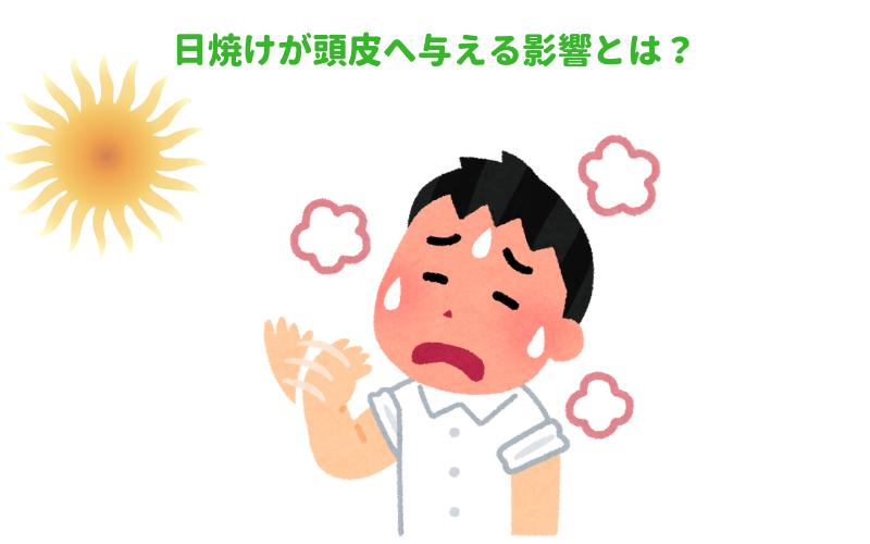 日焼けが頭皮へ与える影響とは?