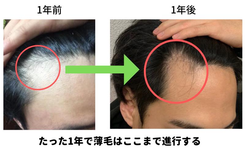 1年間の髪の変化