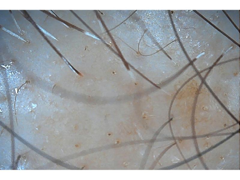 繰り返すヘアカラーや白髪染めによる頭皮の健康状態の変化