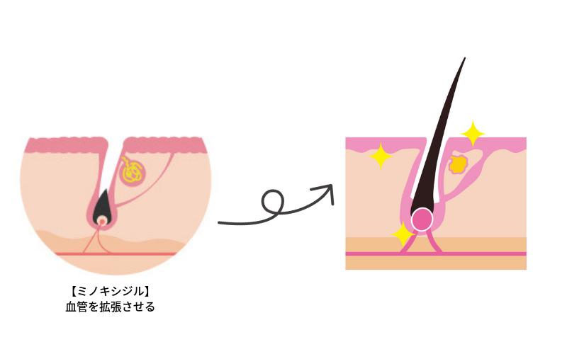 育毛剤の発毛効果