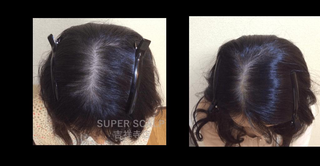 30代の女性に抜け毛 薄毛で悩む人が多い理由とは 原因と対策 スーパースカルプ発毛センター吉祥寺駅前店