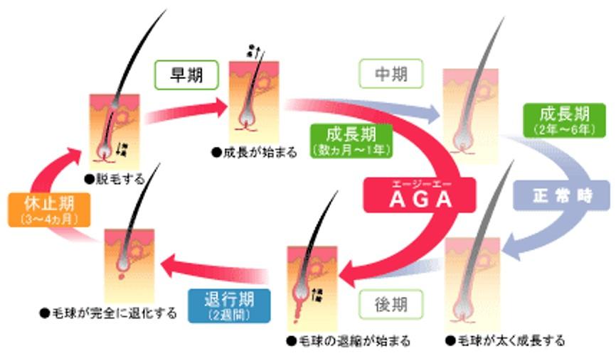 AGAヘアサイクル