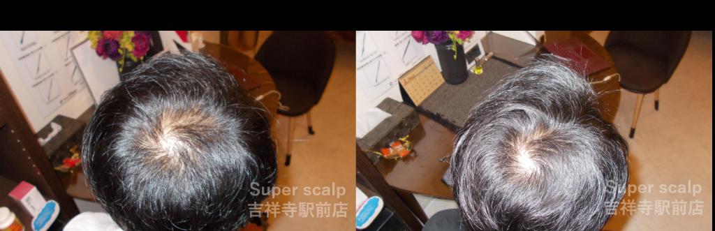 20代男性発毛症例【頭頂部】
