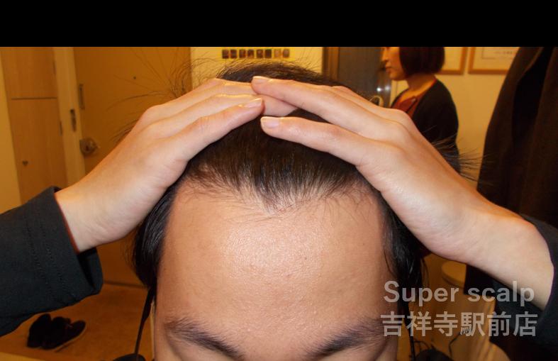 前頭部 After