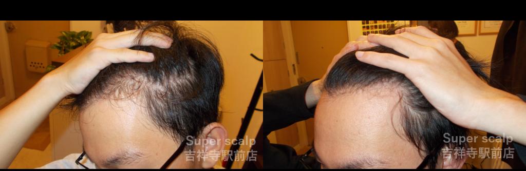 20代男性発毛症例【左M字部分】