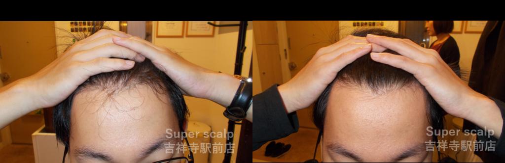 20代男性発毛症例【前頭部】