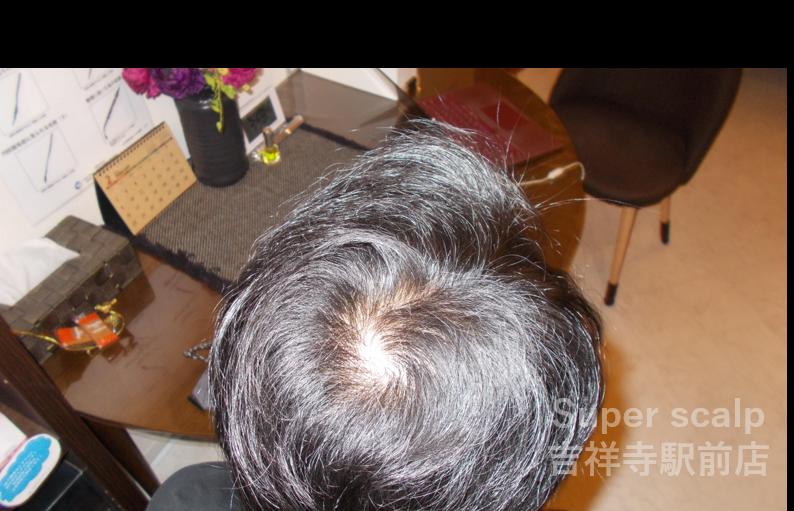 頭頂部 After